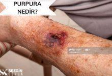 Photo of Purpura Nedir? – Tanım, Nedenleri ve Tedavisi
