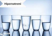 Photo of Hipernatremi: Tanımı, Nedenleri, Belirtileri ve Tedavisi